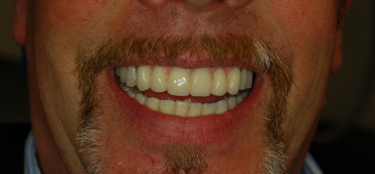 Veneers and Crowns Restore Worn Teeth
