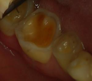 veneers and crowns restore worn teeth lichfield dental implants
