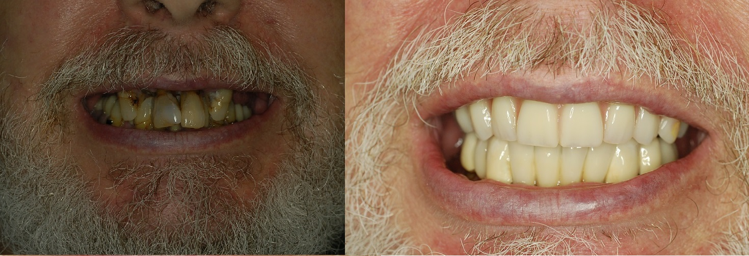 How Much Do All On 4 Dental Implants Cost Lichfield Dental Implants
